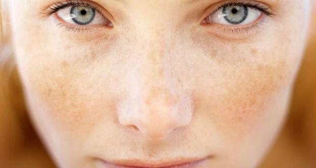 Como acabar com manchas na pele